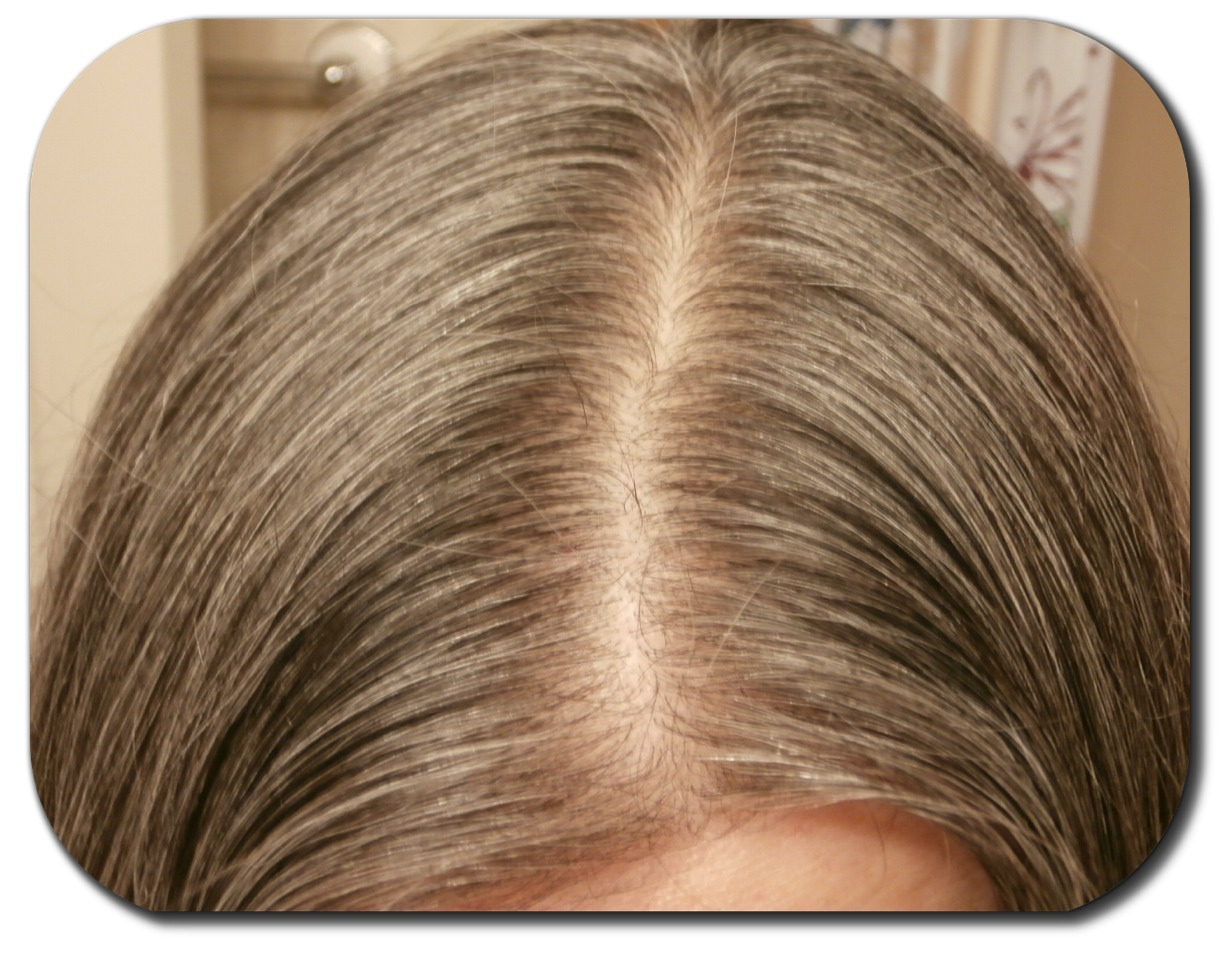 Hair thinning or just a wide part use eye shadow to hide it