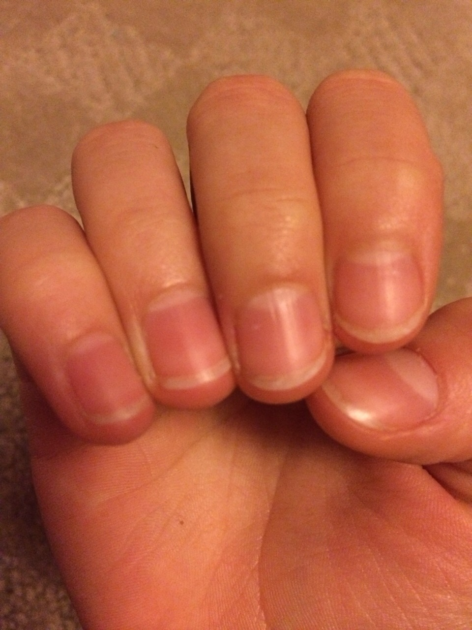 How to recover nails after