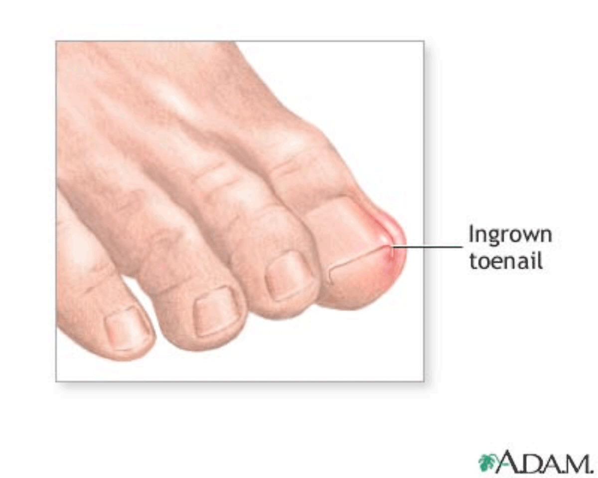 Покалывание в пальце под ногтем