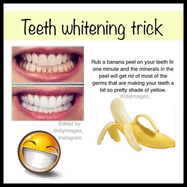 Banana Skin Whitens Teeth Quick Ways To Whiten Teeth Induced Info